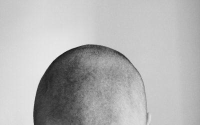 Avoir recours à une greffe de cheveux, comment ça se passe ?